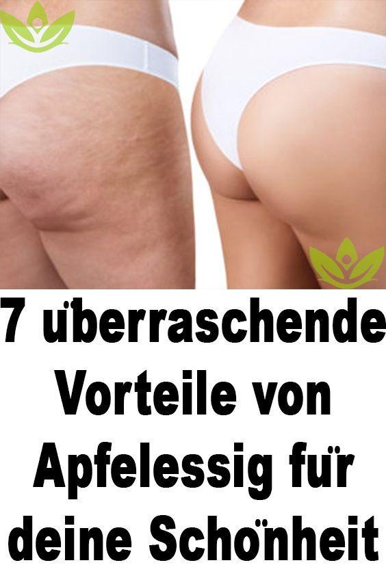 7 überraschende Vorteile von Apfelessig für de…
