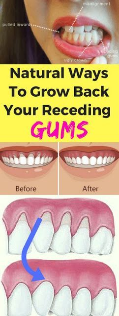 Here Are 3 Natural Ways To Grow Back Your Receding Gums!!!