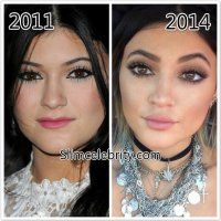 KYLIE JENNER - NOSE JOB