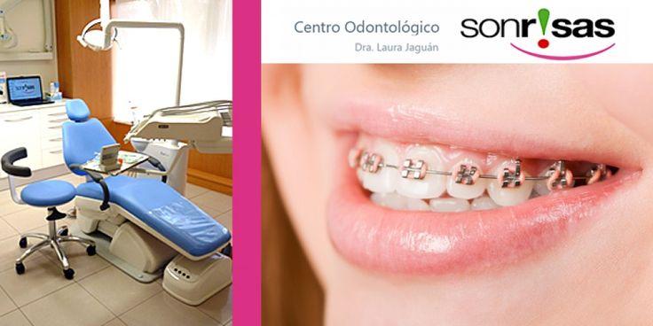 OFERTA CUPONISIMO: Ortodoncia con brackets metálicos por 299€ o con brackets estéticos 499€