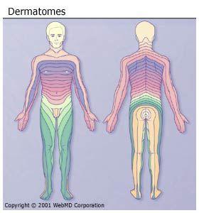Can shingles cause neuropathy?