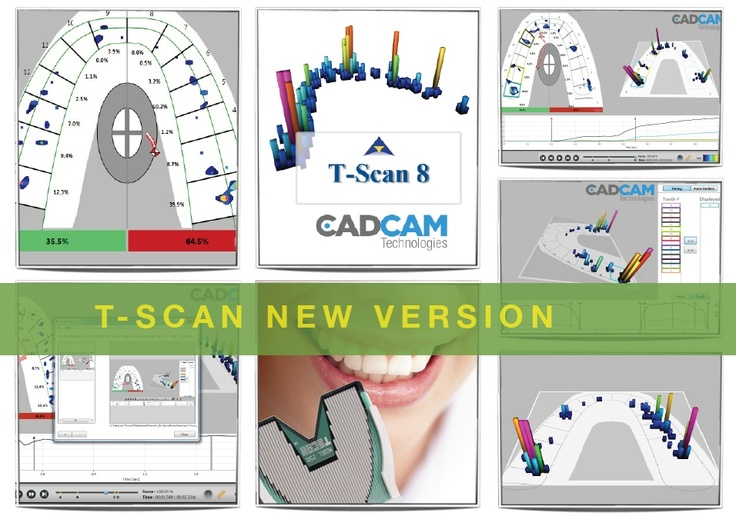 T-SCAN ® new grafic