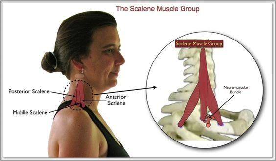 image Group therapy muscle first time sierra