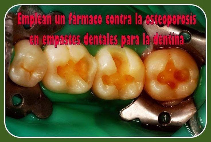remineralizacion-dental