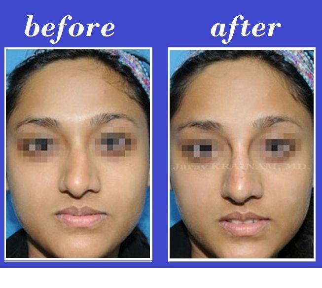 Bangkok Aesthetic Surgery Center: Deviated nose filler injection