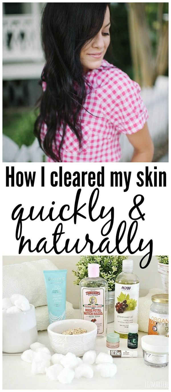 How I healed my skin the natural way! The perfect skin care routine for oily acne prone skin!! A must pin!