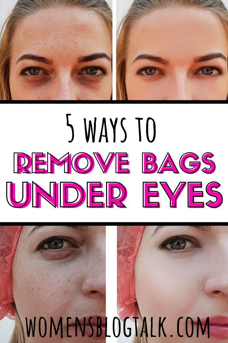 d6e4573191caf281b1b0bb6cd7c0d5c1 - How To Get Rid Of Tired Looking Eyes Naturally