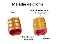 La maladie de Crohn : quel est le meilleur régime alimentaire quotidien?   La maladie de Crohn est une maladie chronique qui survient par crises, qui sont plus ou moins fortes selon les périodes. Il est préférable d'éviter les produits laitiers et le stress, qui exacerbent cette affection.