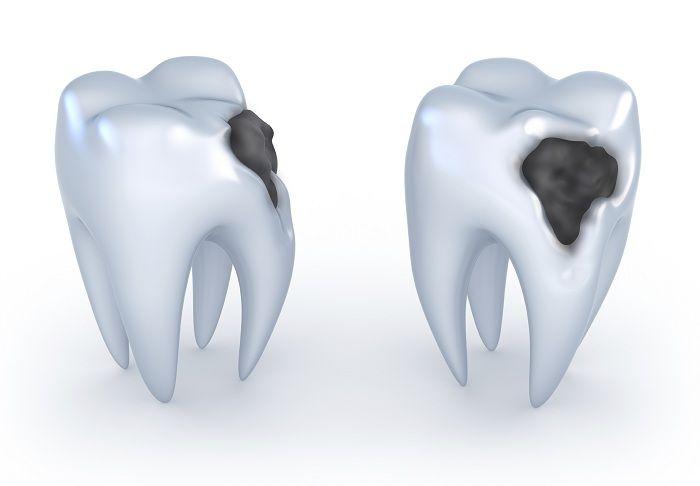 Nová zubní pasta může způsobit nezaměstnanost zubařů: Léčí zubní kazy a…
