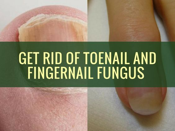 Get Rid of Toenail and Fingernail Fungus fast with Natural Remedies - http://natadviser.com/get-rid-of-toenail-and-fingernail-fungus/