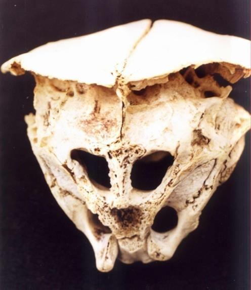 O CRÂNIO DE RHODOPE: Seria este Crânio de um Verdadeiro ALIENÍGENA? (VÍDEO)
