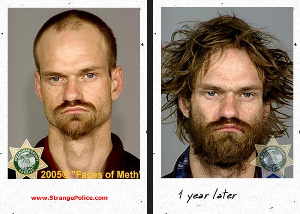 DANGERS OF DRUGS - METH USERS MUG SHOTS & 5 YEARS LATER ...