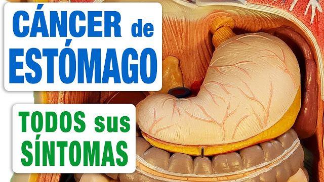 TU SALUD Y BIENESTAR : 12 síntomas comunes de cáncer de estómago