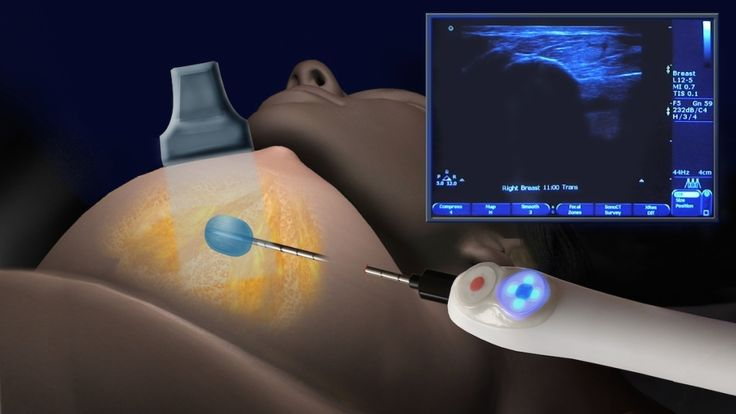 a woman receiving cryoblation treatment for breast fibroadenomas (benign breast cysts). A thin, wand-like needle is inserted into the breast, directly into the breast tumor. A gas is then pumped through the needle that freezes the cyst and kills the cells. Then doctors stop and let the tumor thaw before applying another round of freezing gas. This is repeated several times until all the cyst cells have been eliminated.