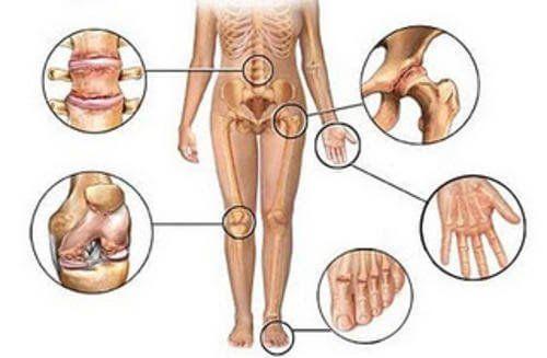 5 natürliche Entzündungshemmer gegen Gelenkschmerzen - Besser Gesund Leben