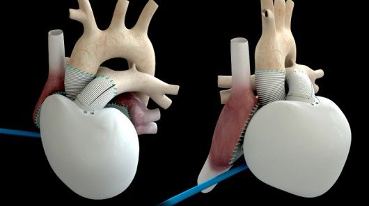 Last Wednesday in Paris, a 75 year-old man received an artificial heart. That in itself might not be newsworthy, however, the gadget in question was the first Carmat artificial heart to ever be implanted in a human. According to its inventor, it's the world's first self-regulating artificial heart.