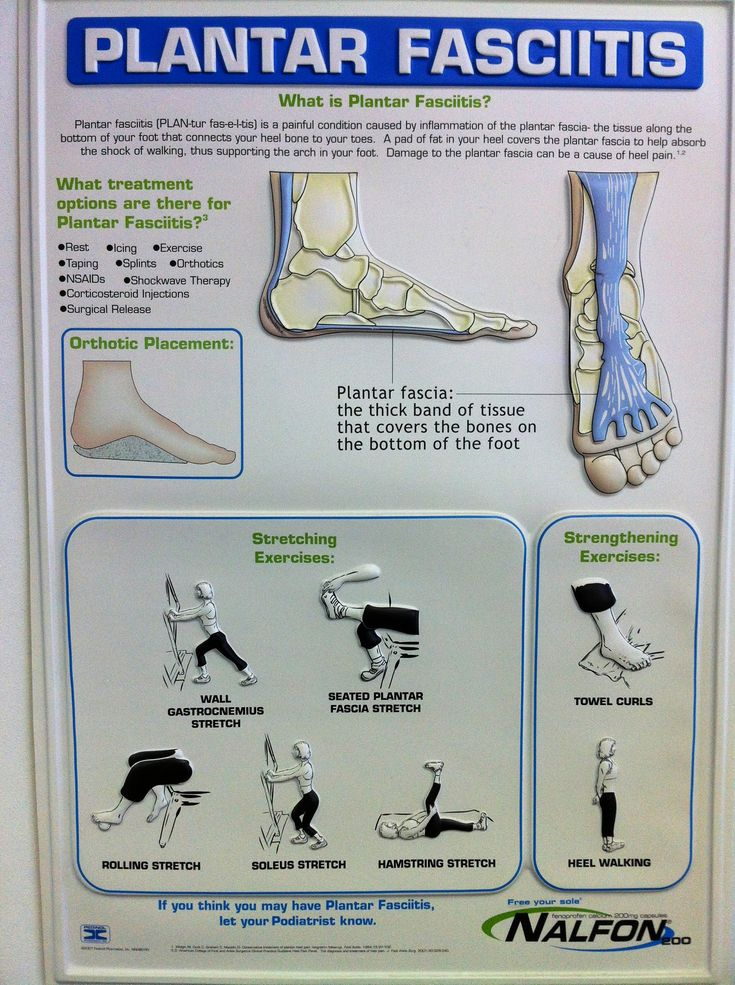 Free Medical Research Papers Plantar Fasciitis