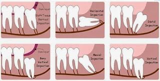 DINESH'S DENTAL PARADISE: Impacted wisdom teeth fall into one of several cat...