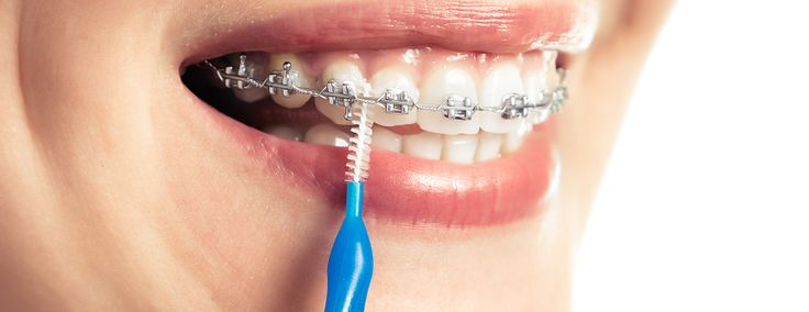 If you don't have access to a #toothbrush, use an interdental brush to dislodge any #food that may get caught around your #braces. We also recommend drinking a glass of water after meals and snacks as this can help prevent acid attack on the #teeth!