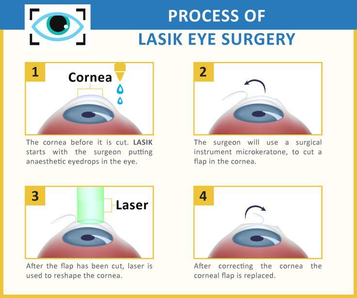 342 best Laser Surgery For Eyes images on Pinterest ...