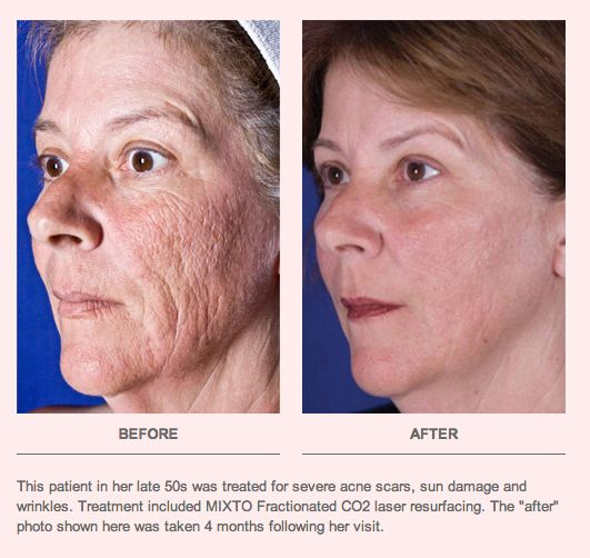 """This patient in her late 50s was treated for severe acne scars, sun damage and   wrinkles. Treatment included MIXTO Fractionated CO2 laser resurfacing. The """"after"""" photo shown here was taken 4 months following her visit.  Even if your complexion looks old and tired, there is younger, healthier skin below that can give you a radiant new appearance. Dr. Lisa Airan performs laser skin resurfacing at her Manhattan office to reveal this younger skin and minimize the appearance of surface…"""