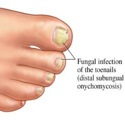 how to get rid of an infection in your toe