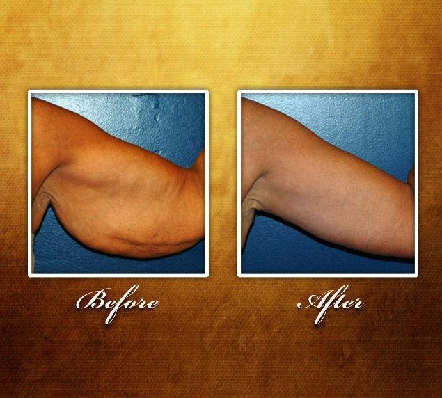 Under Arm Lifts : Best reconstruct me images on pinterest el salvador