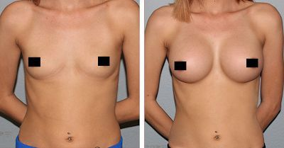 Foresighted suggested Breast enlargement supplemen…