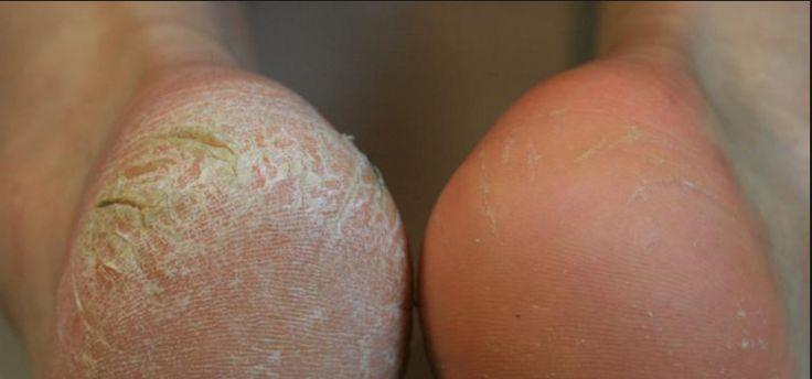 WOW! Dit gebeurt er als je een snee brood rond je voet bindt! Deze tip MOET je zien!