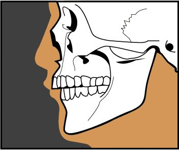 Faces that Smile - Lower Jaw & Chin Deficiencies