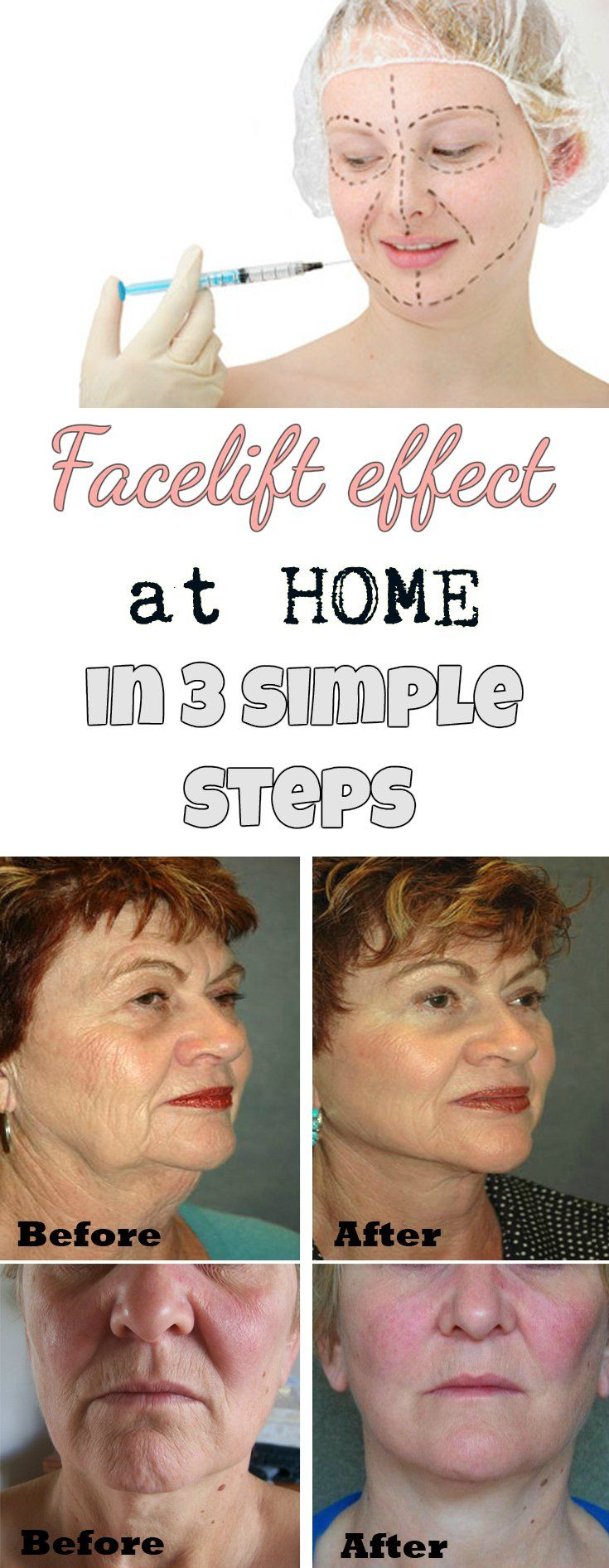 Facelift effect at home in 3 simple steps - WomenZoom.com