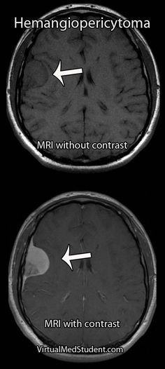 Charmant Radiologietechniker Resume Probe Fotos ...