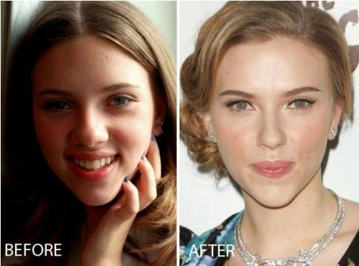 Before After Scarlett Johansson Nose Job Before and After.. This is what I need