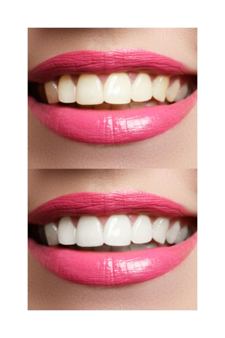 Whitening treatment as is indicated by comparison to the whitening - Naturally Whitening Teeth For Less Than 5 Don T You Just Love White Teeth
