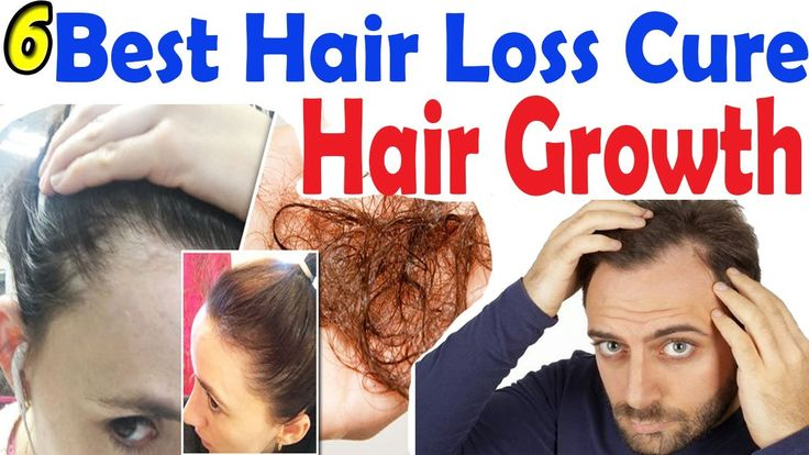 6 Best Hair Loss Cure 2017 & Treatment | Hair Loss Treatments 2017