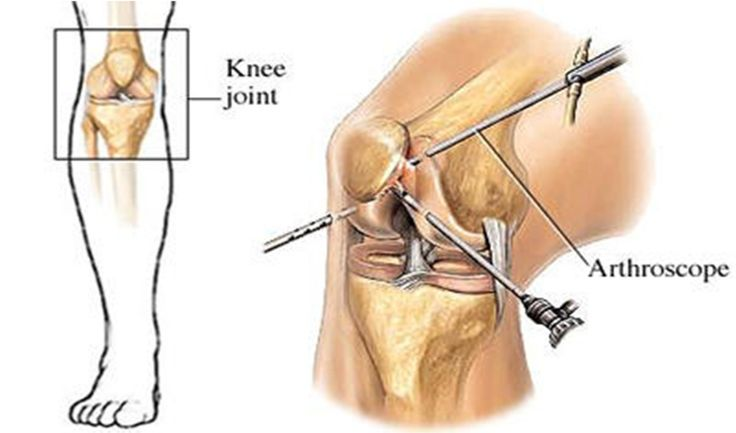 Dr.j. maheshwari is the best orthopaedic doctor in delhi. If you want to get the best orthopaedic services.  #Knee Replacement in Delhi #Computerized Knee Replacement in Delhi #Dislocation Shoulder Surgery in Delhi #Shoulder Arthroscopy in Delhi #Partial Knee Replacement in Delhi #Knee Ligament Surgery in Delhi #Best knee specialist in Delhi #Best knee doctor in Delhi #Best knee replacement surgeon in Delhi #Best knee surgeon in Delhi Click here http://www.kneeandshoulderclinic.com/