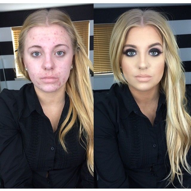 "College student Ashley VanPevenage is fighting internet bullies who turned her unbelievable before-and-after acne transformation photo into a meme. VanPevenage covered up a bad acne breakout with makeup and it was turned it into a viral meme with two captions: ""The reason you gotta take a b-tch swimming on the first date"" and ""I don't understand how people can do this and I can't figure out how to conceal a single pimple on my face."" After both versions were shared countless times across…"