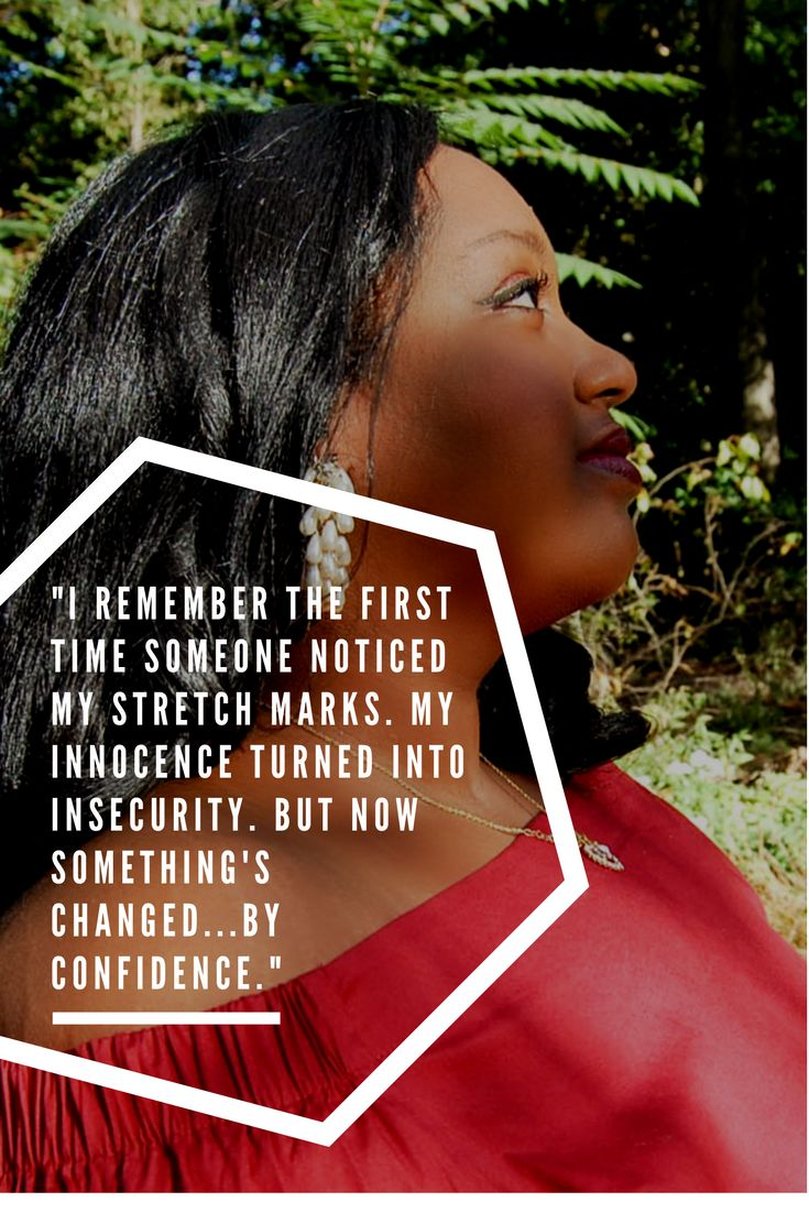 Tiger Stripes | Learning to Accept My Stretch Marks www.pinkcaboodle.com #plusSize #plusSizeFashion #BodyPositive #PerfectlyMe #confidence #SelfEsteem #quotes #inspiration