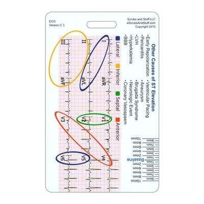 "This badge card is a 12 lead STEMI reference tool.  It shows the standard 12 lead layout and the associated ""adjacent"" leads relative to the location in the heart.  On the back there is also a chart of ST changes and their association to particular coronary vessels.  The tool also includes a ruler for measuring ST elevation and depression."