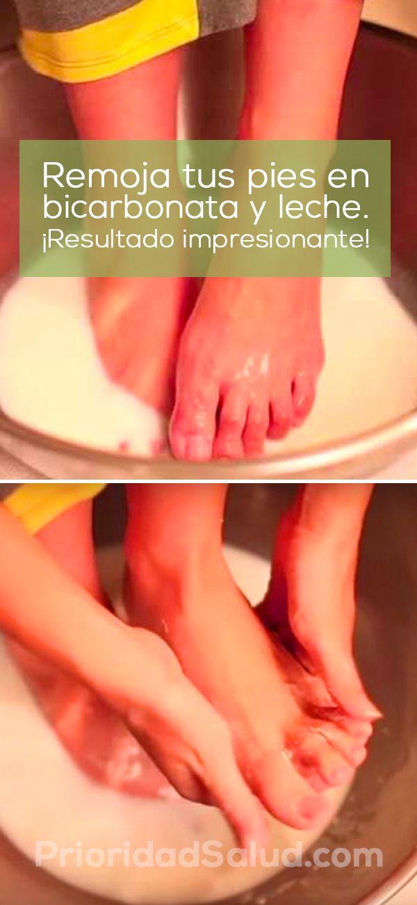 Remoja tus pies en bicarbonato y leche, y sorpréndete del resultado.