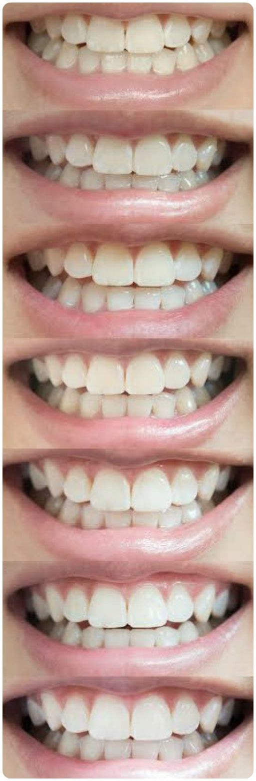 Real results from Smile Brilliant's Professional Teeth Whitening System! You can achieve professional results from the comfort of your home AND without the dentist price tag.