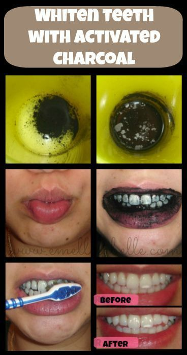 Whiten Teeth With Activated Charcoal Teeth Care Pinterest