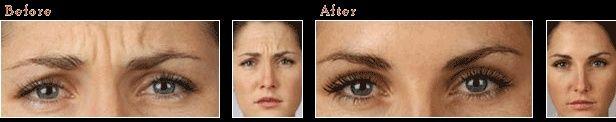 Botox em Edimburgo – antes e depois da foto