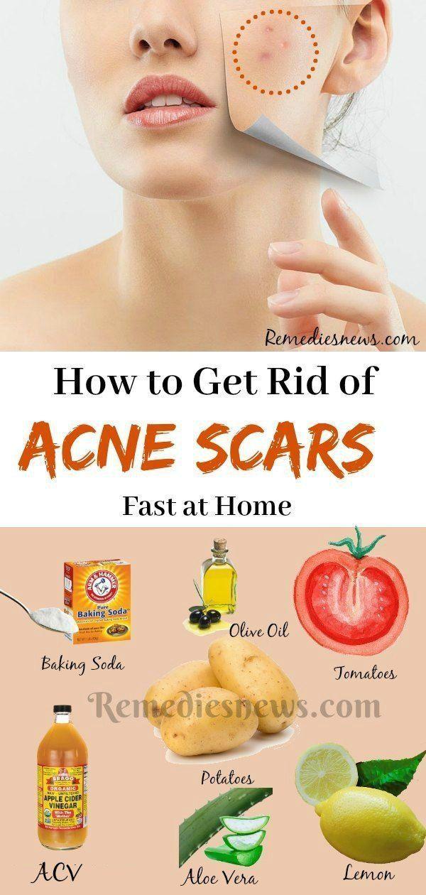 Pin On Ingrown Hair Scars