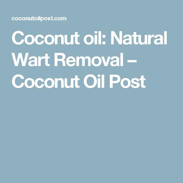 Coconut oil: Natural Wart Removal – Coconut Oil Post http://www.wartalooza.com/treatments/nail-polish
