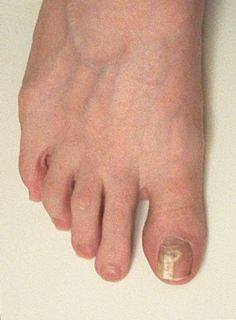 The Efficacy of Vinegar and Hydrogen Peroxide in Treating Toenail Fungus: A Case Study (tells how to treat toenail fungus naturally)
