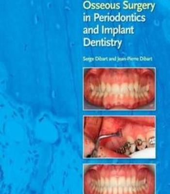 Periodontics Medicine Surgery And Implants Pdf
