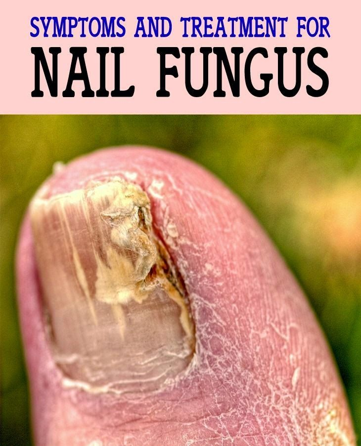 Symptoms and Treatment for Nail Fungus | Medi Tricks