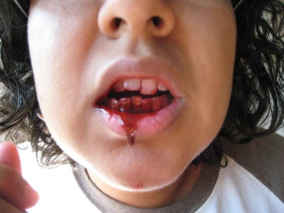 no cook edible fake blood for mouth wounds etc - Halloween Fake Wounds