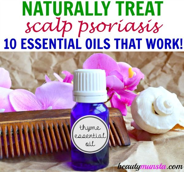 Can scalp psoriasis be cured? Is there an alternative to conventional scalp psoriasis treatment? Learn how to use essential oils for scalp psoriasis!